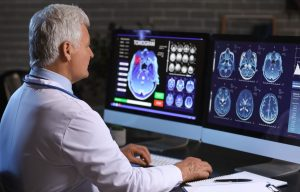 doctor reviewing brain scan on computer screen
